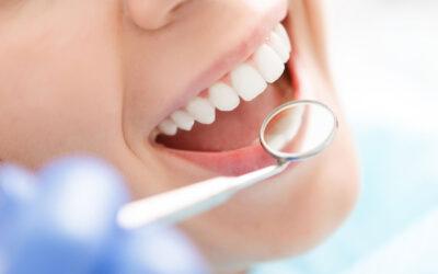 La parodontite: cos'è e quali sono i sintomi principali