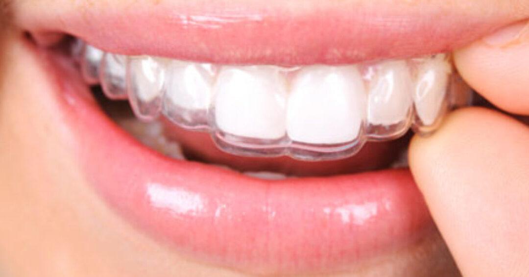 Ortodonzia invisibile e apparecchio ortodontico invisibile, come funziona