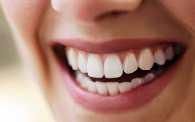 Faccette dentali: tutto quello che c'è da sapere